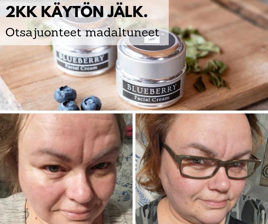 Retinoli Mustikkavoide a vitamiini Chosen by Johanna