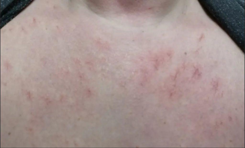 hämähäkkiluomet tyrni luksus spa saippualla