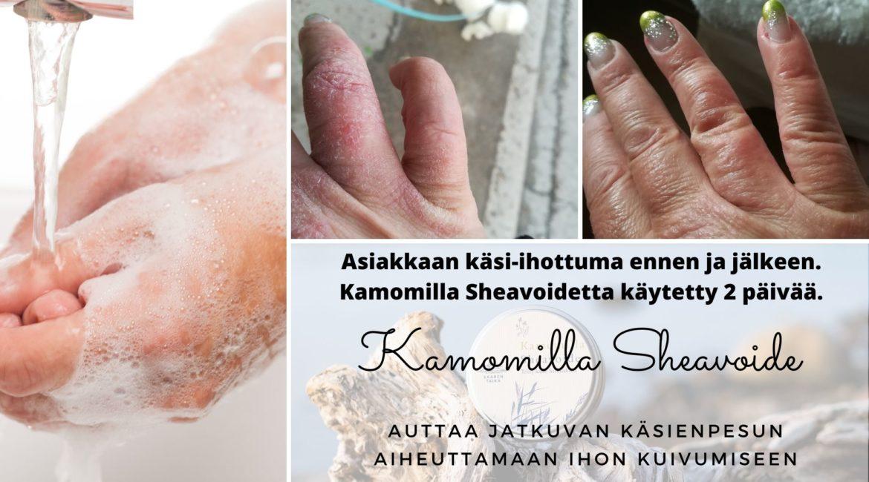 auttaa jatkuvan käsienpesun aiheuttamaan ihon kuivumiseen