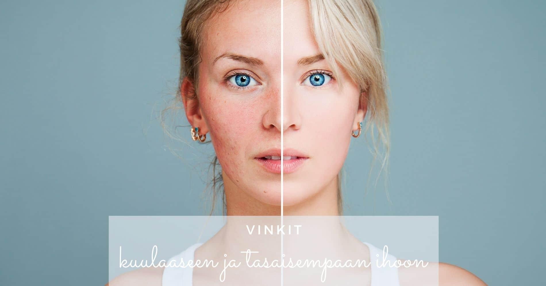 vinkit kuulaaseen ja tasaisempaan ihoon