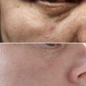 Saaren Taika Ecolution Ihon punoitusoireita rauhoittava hoitovoide on auttanut ruusufinnin ja couperosan aiheuttamiin iho-ongelmiin