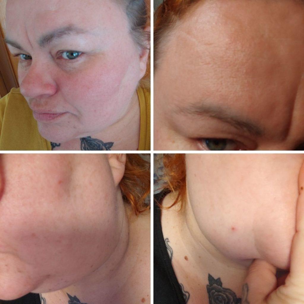 hyaluronihapon väärä käyttötapa ärsyttää ja kuivattaa ihoa